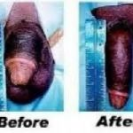 BACK ON FORM penis enlargement +27793478685 CREAM & PILLS ON SALE IN ekuPhakameni Hillcrest Illovo Beach Isipingo Karridene