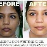 GET ORIGINAL SKIN WHITENING OIL    INJECTIONS/CREAMS AND PILLS, JAPAN PLATINUM CALL +27738432716